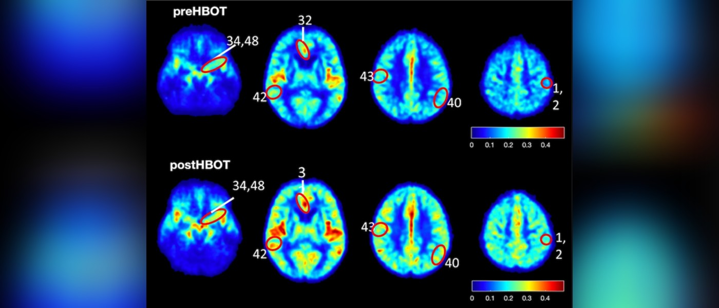 Oxygen Therapy May Slow Hallmarks of Alzheimer's, Study Finds